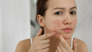 Photo of Home Remedies for Acne – Ayurveda Treatment