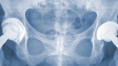 Photo of Joint Replacement Surgery Benefits